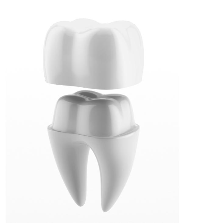 Dental crown Brisbane